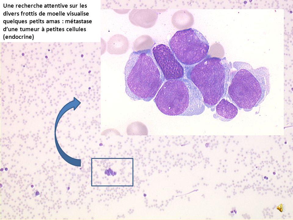 Une recherche attentive sur les divers frottis de moelle visualise quelques petits amas : métastase dune tumeur à petites cellules (endocrine)