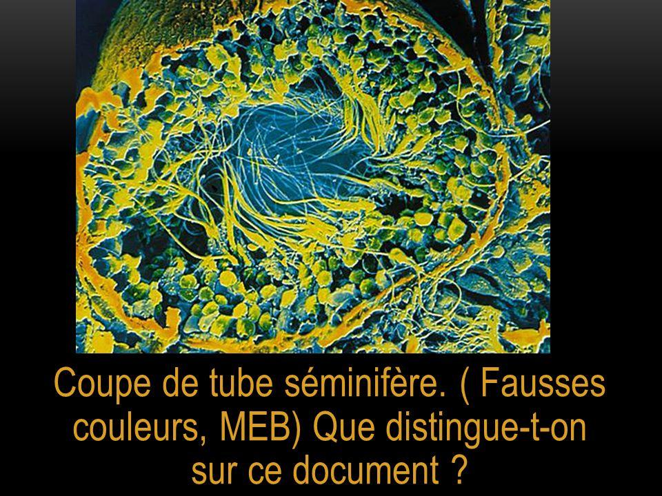 Coupe de tube séminifère. ( Fausses couleurs, MEB) Que distingue-t-on sur ce document ?