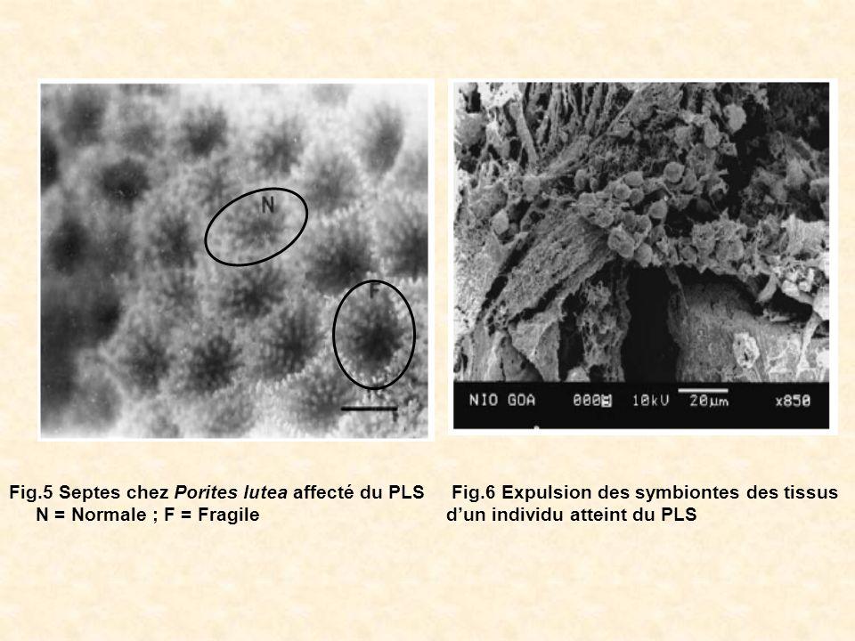 Fig.6 Expulsion des symbiontes des tissus dun individu atteint du PLS Fig.5 Septes chez Porites lutea affecté du PLS N = Normale ; F = Fragile