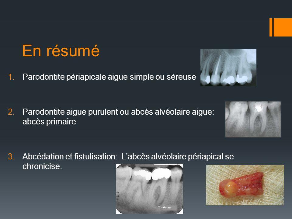 En résumé 1.Parodontite périapicale aigue simple ou séreuse 2.Parodontite aigue purulent ou abcès alvéolaire aigue: abcès primaire 3.Abcédation et fis