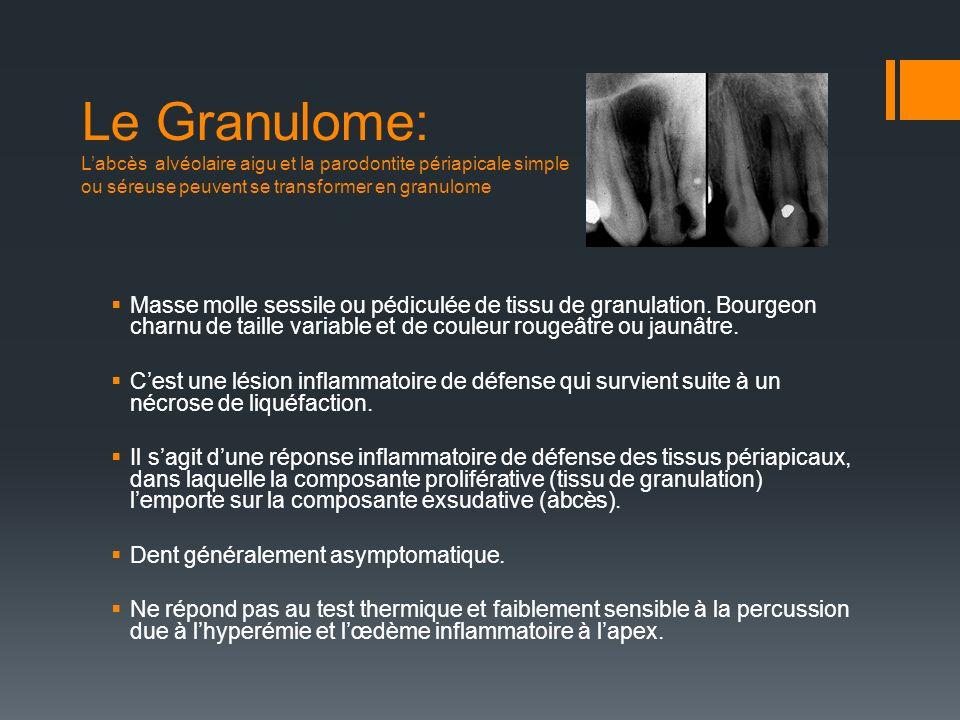 Le Granulome: Labcès alvéolaire aigu et la parodontite périapicale simple ou séreuse peuvent se transformer en granulome Masse molle sessile ou pédicu