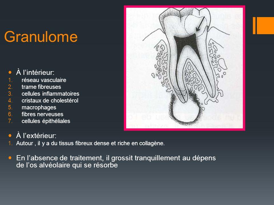 Granulome À lintérieur: 1.réseau vasculaire 2.trame fibreuses 3.cellules inflammatoires 4.cristaux de cholestérol 5.macrophages 6.fibres nerveuses 7.c