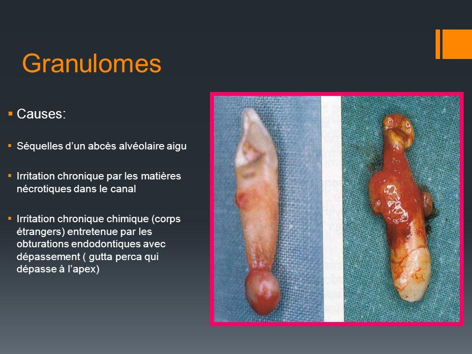 Granulomes Causes: Séquelles dun abcès alvéolaire aigu Irritation chronique par les matières nécrotiques dans le canal Irritation chronique chimique (