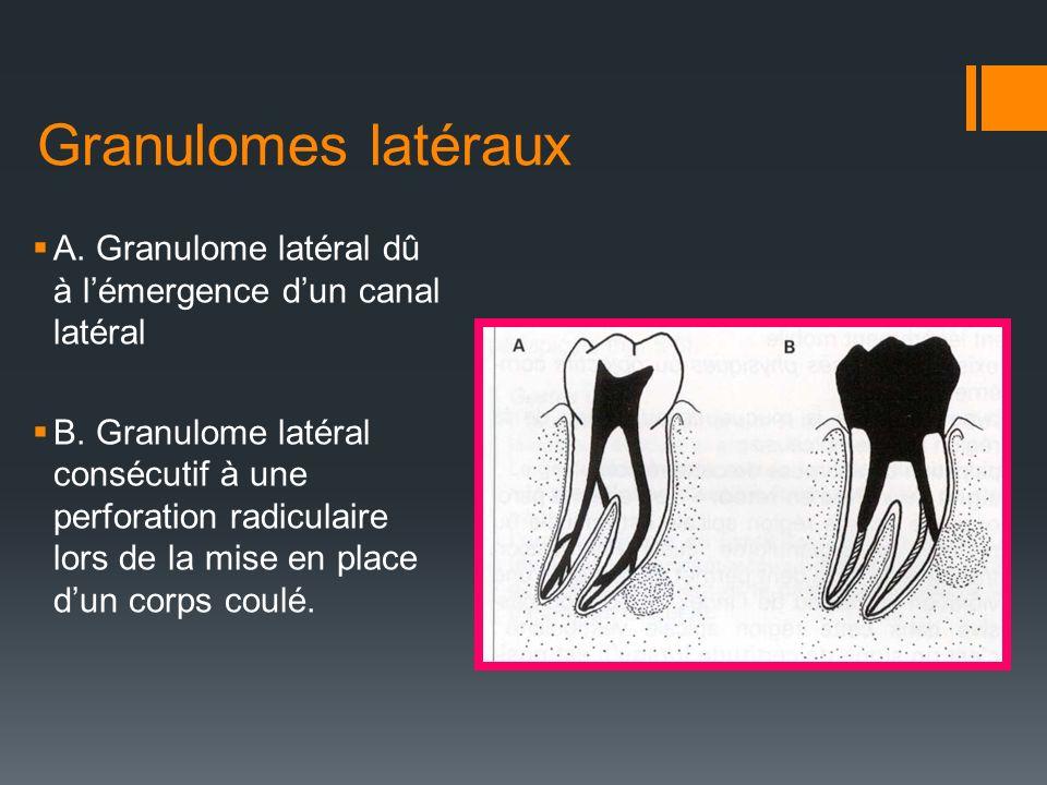 Granulomes latéraux A. Granulome latéral dû à lémergence dun canal latéral B. Granulome latéral consécutif à une perforation radiculaire lors de la mi