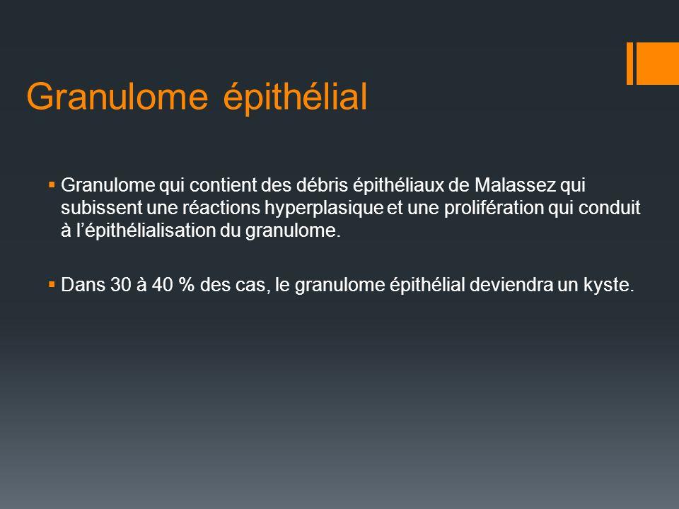 Granulome épithélial Granulome qui contient des débris épithéliaux de Malassez qui subissent une réactions hyperplasique et une prolifération qui cond