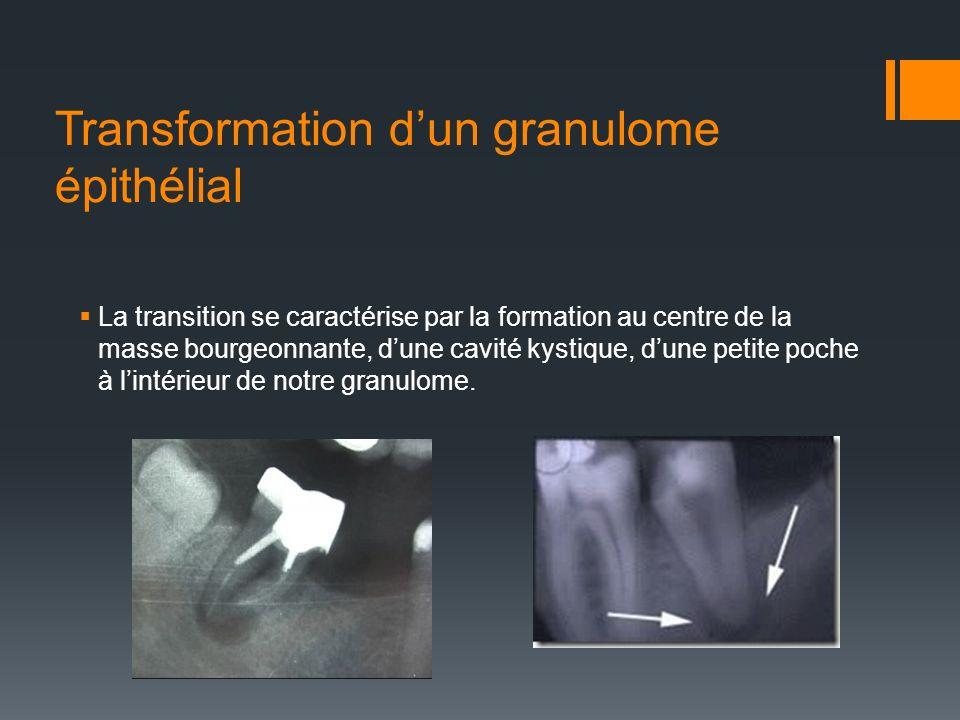 Transformation dun granulome épithélial La transition se caractérise par la formation au centre de la masse bourgeonnante, dune cavité kystique, dune