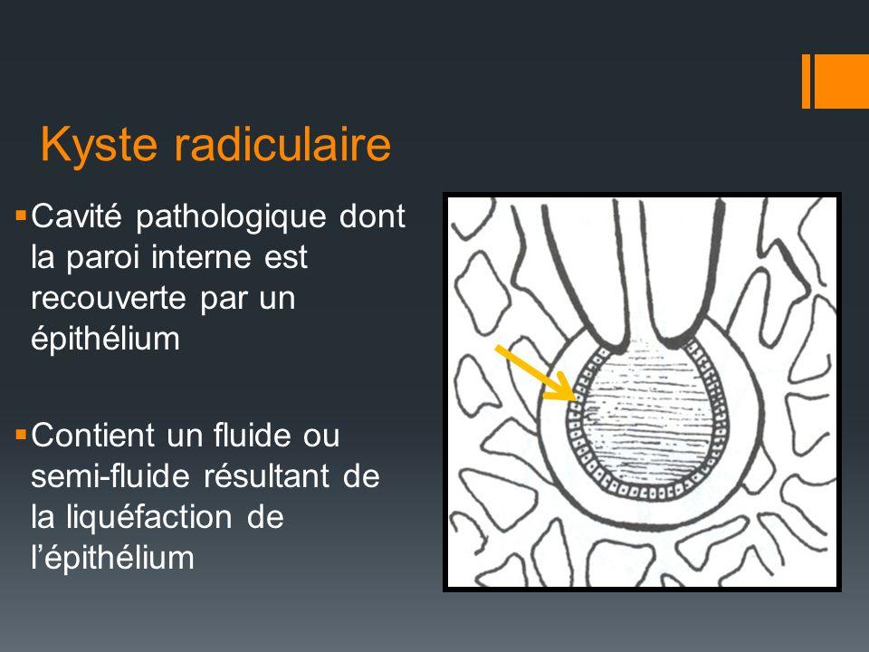 Kyste radiculaire Cavité pathologique dont la paroi interne est recouverte par un épithélium Contient un fluide ou semi-fluide résultant de la liquéfa