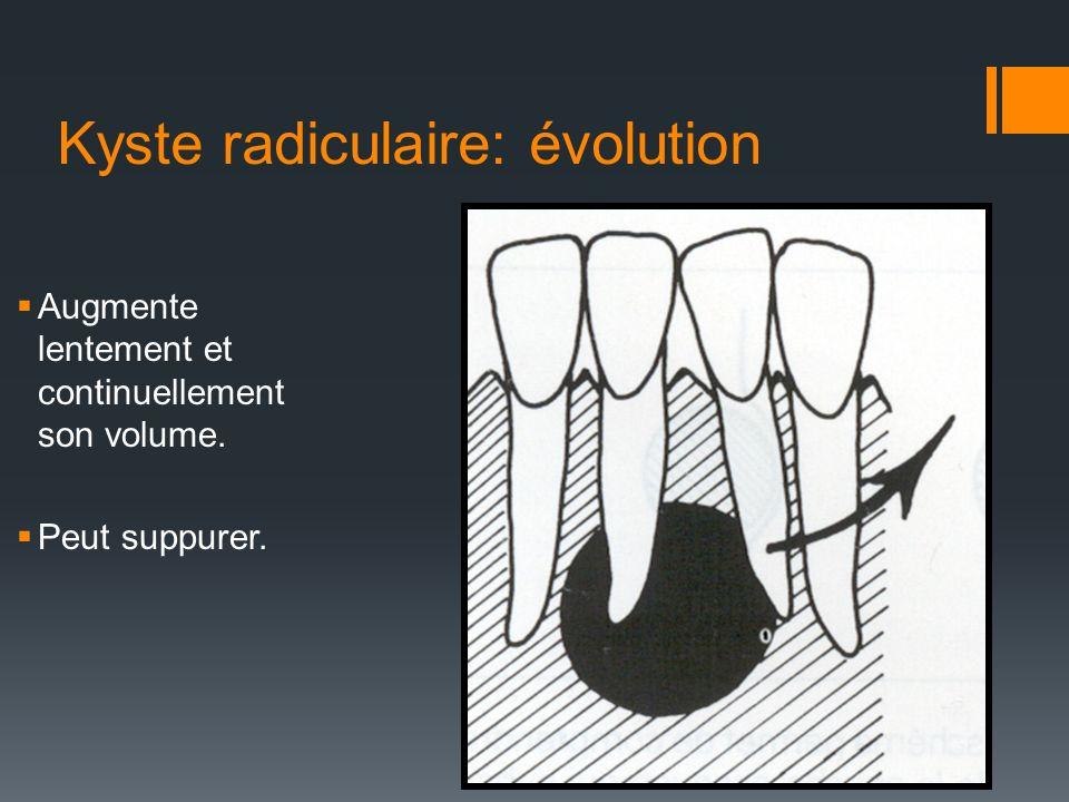 Kyste radiculaire: évolution Augmente lentement et continuellement son volume. Peut suppurer.