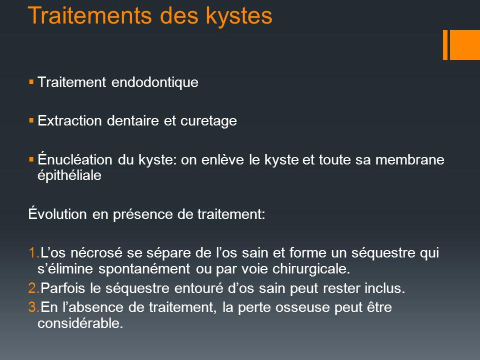 Traitements des kystes Traitement endodontique Extraction dentaire et curetage Énucléation du kyste: on enlève le kyste et toute sa membrane épithélia