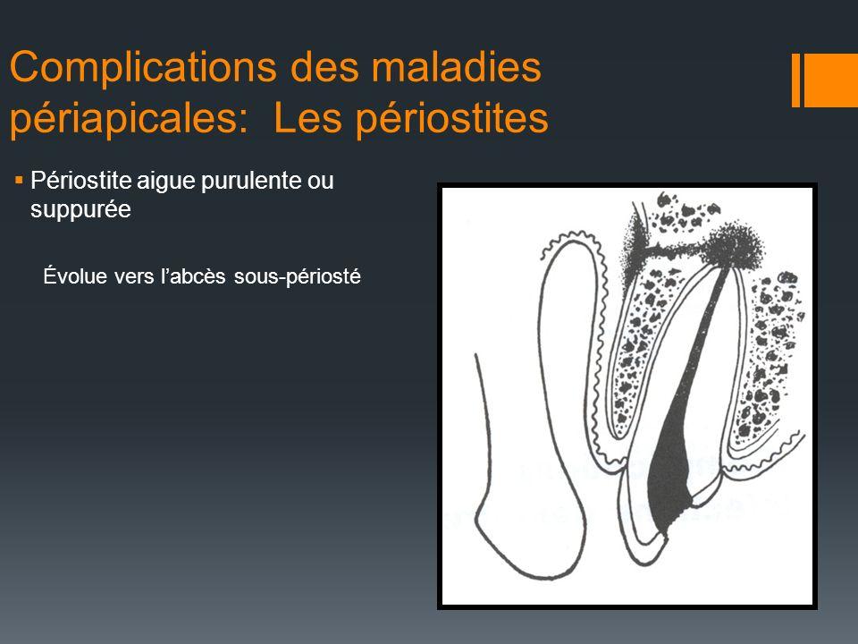 Complications des maladies périapicales: Les périostites Périostite aigue purulente ou suppurée Évolue vers labcès sous-périosté
