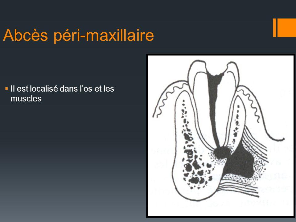 Abcès péri-maxillaire Il est localisé dans los et les muscles