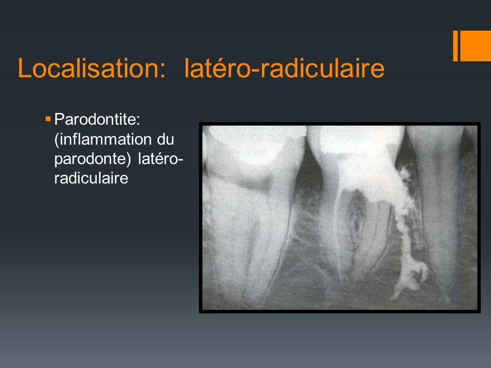 Localisation: latéro-radiculaire Parodontite: (inflammation du parodonte) latéro- radiculaire