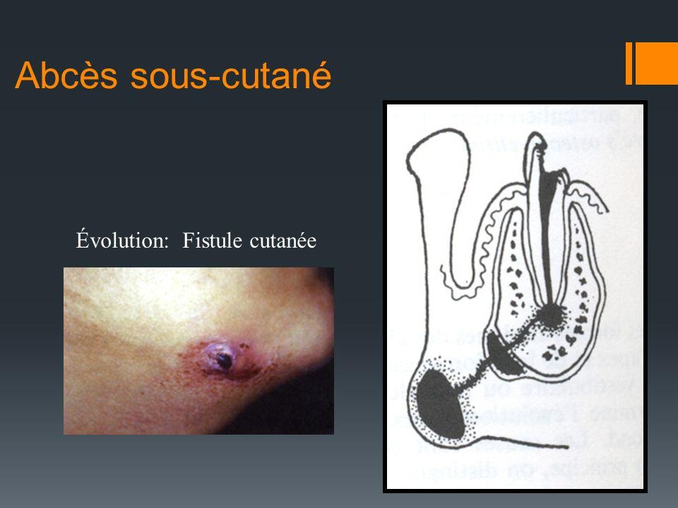Abcès sous-cutané Évolution: Fistule cutanée