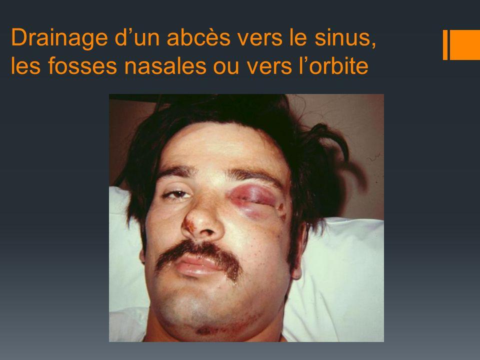 Drainage dun abcès vers le sinus, les fosses nasales ou vers lorbite
