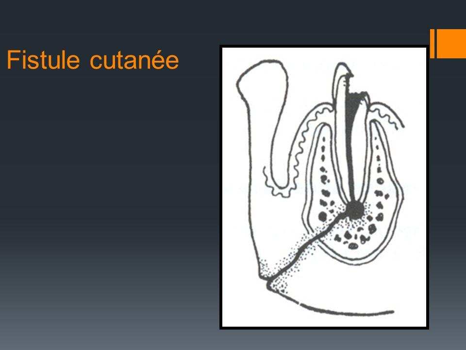 Fistule cutanée