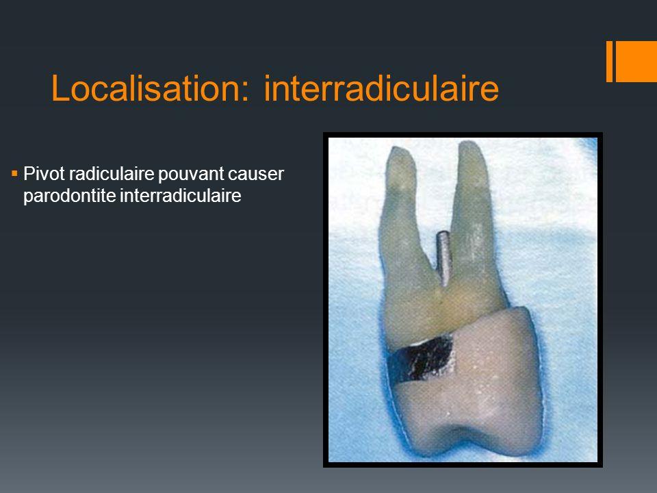 Résorptions Résorption de los, du cément et de la dentine de lapex à cause de la lésion apicale.