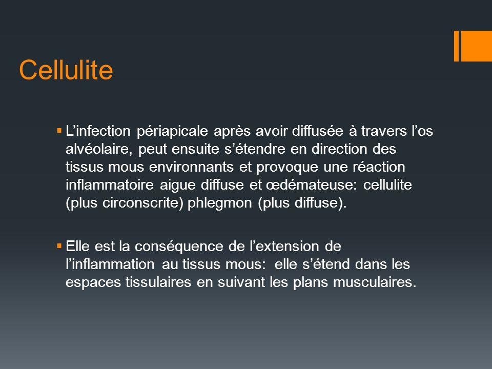 Cellulite Linfection périapicale après avoir diffusée à travers los alvéolaire, peut ensuite sétendre en direction des tissus mous environnants et pro