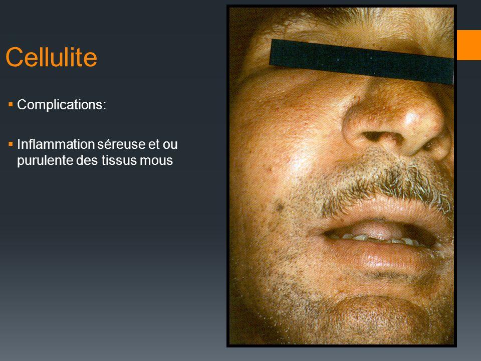Cellulite Complications: Inflammation séreuse et ou purulente des tissus mous