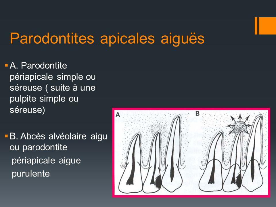 Parodontites apicales aiguës A. Parodontite périapicale simple ou séreuse ( suite à une pulpite simple ou séreuse) B. Abcès alvéolaire aigu ou parodon