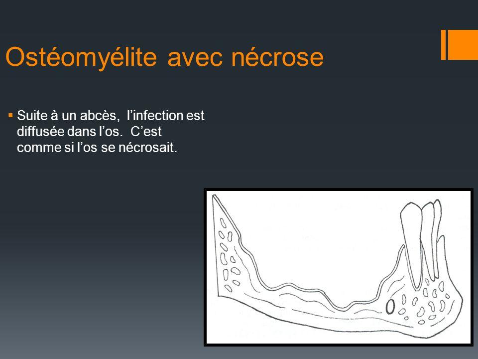 Ostéomyélite avec nécrose Suite à un abcès, linfection est diffusée dans los. Cest comme si los se nécrosait.