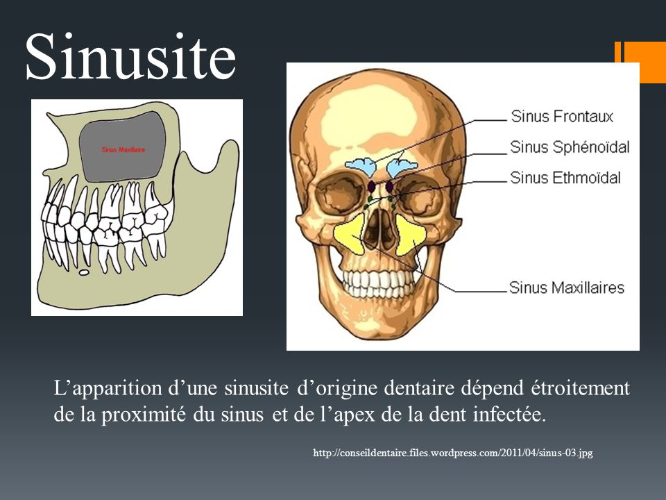 http://conseildentaire.files.wordpress.com/2011/04/sinus-03.jpg Sinusite Lapparition dune sinusite dorigine dentaire dépend étroitement de la proximit