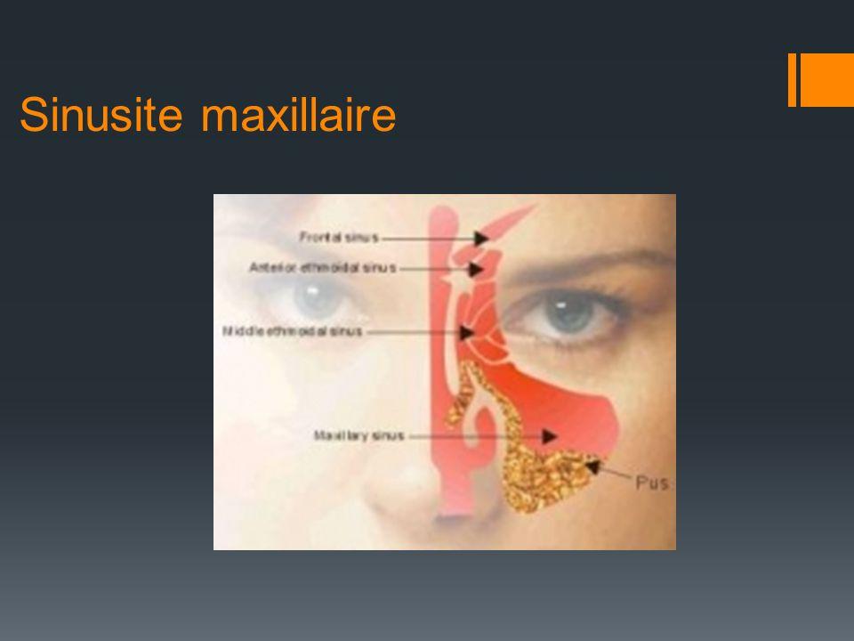 Sinusite maxillaire