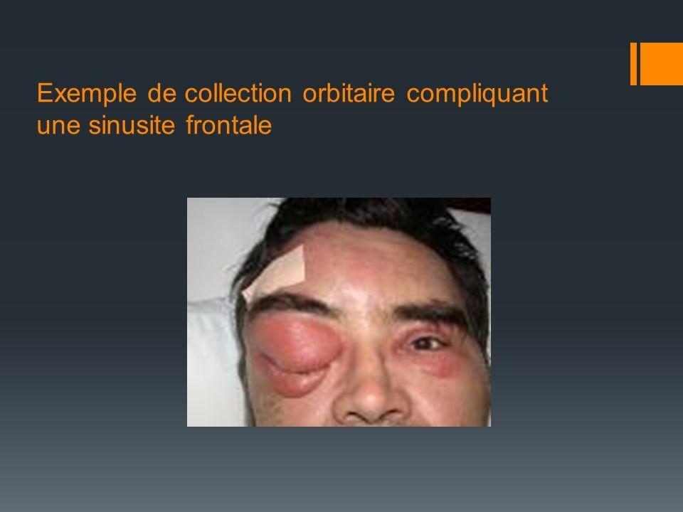 Exemple de collection orbitaire compliquant une sinusite frontale