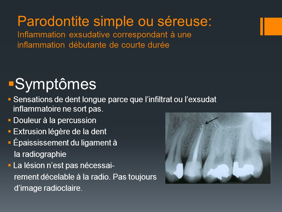 Parodontite simple ou séreuse: Inflammation exsudative correspondant à une inflammation débutante de courte durée Symptômes Sensations de dent longue
