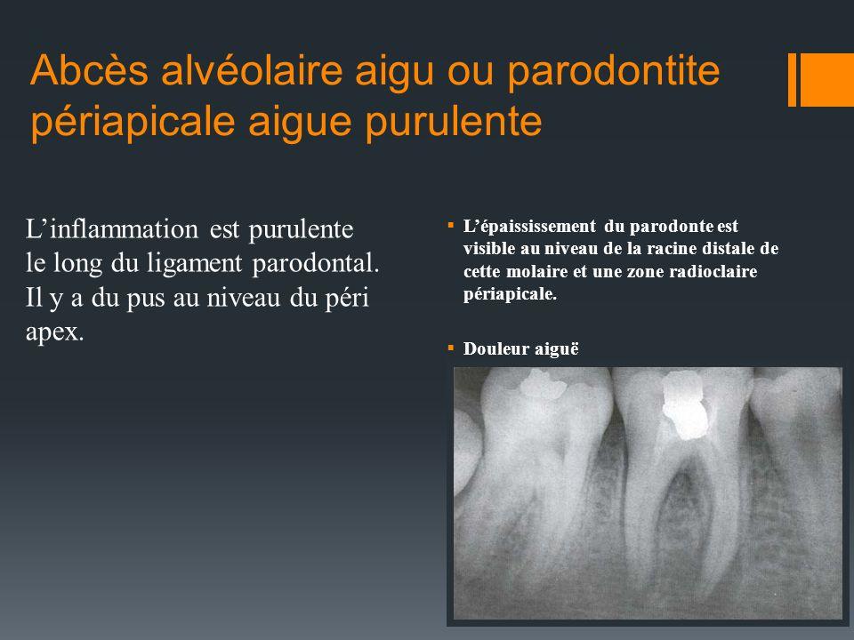 Abcès alvéolaire aigu Signes et symptômes: Dent sensible, douleur à la percussion Rougeur, chaleur, tuméfaction Légère extrusion de la dent dans lalvéole Lymphadénopathie, fièvre Cest le stade le plus douloureux.
