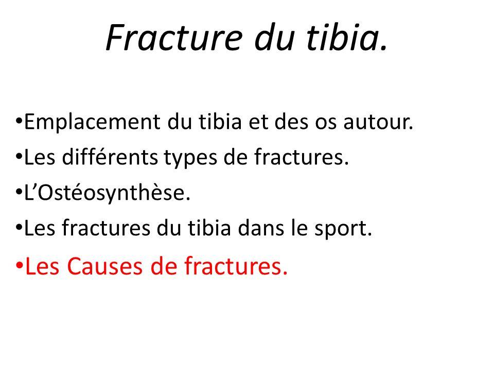 Fracture du tibia. Emplacement du tibia et des os autour. Les différents types de fractures. LOstéosynthèse. Les fractures du tibia dans le sport. Les