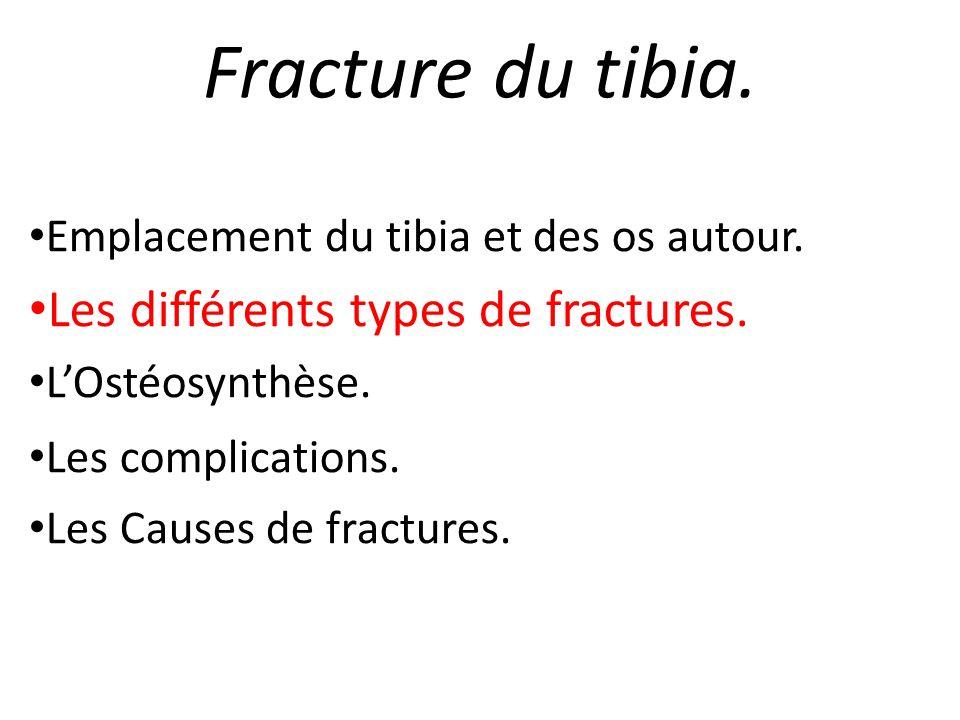 Fracture du tibia. Emplacement du tibia et des os autour. Les différents types de fractures. LOstéosynthèse. Les complications. Les Causes de fracture
