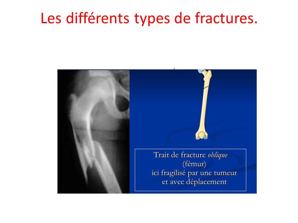 Fracture du tibia.Emplacement du tibia et des os autour.