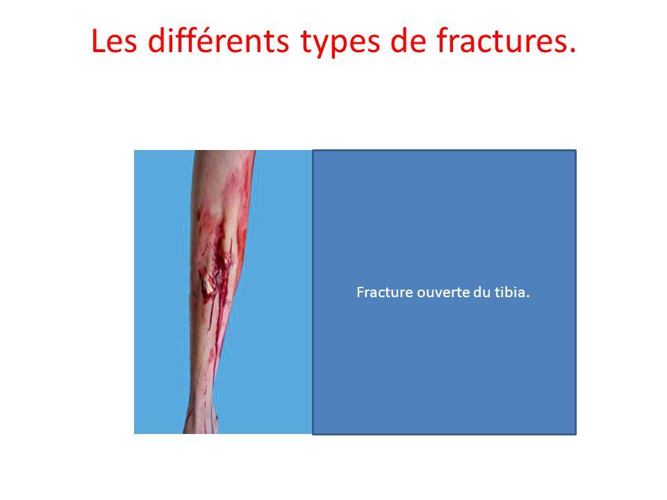 Fracture ouverte du tibia.