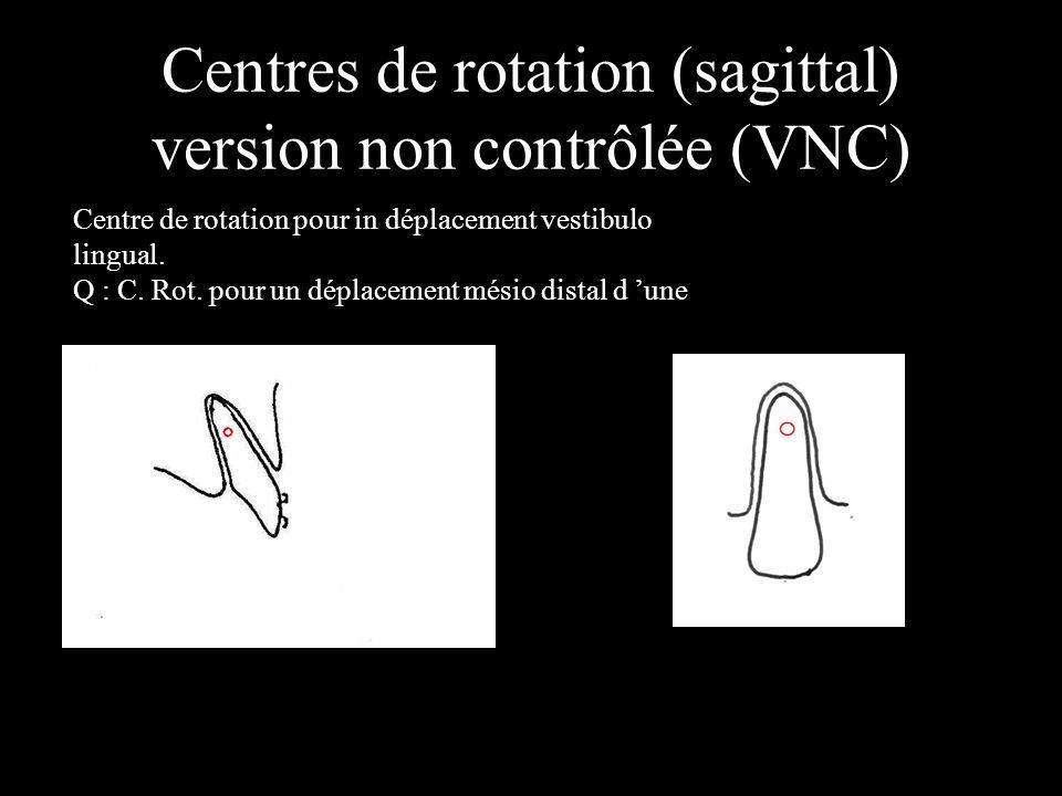 Centres de rotation (sagittal) version non contrôlée (VNC) Centre de rotation pour in déplacement vestibulo lingual. Q : C. Rot. pour un déplacement m