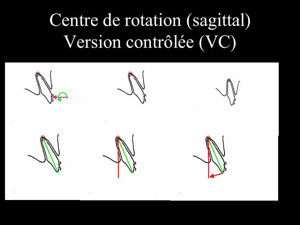 Centre de rotation (sagittal) Version contrôlée (VC) position du centre de rotation vc.
