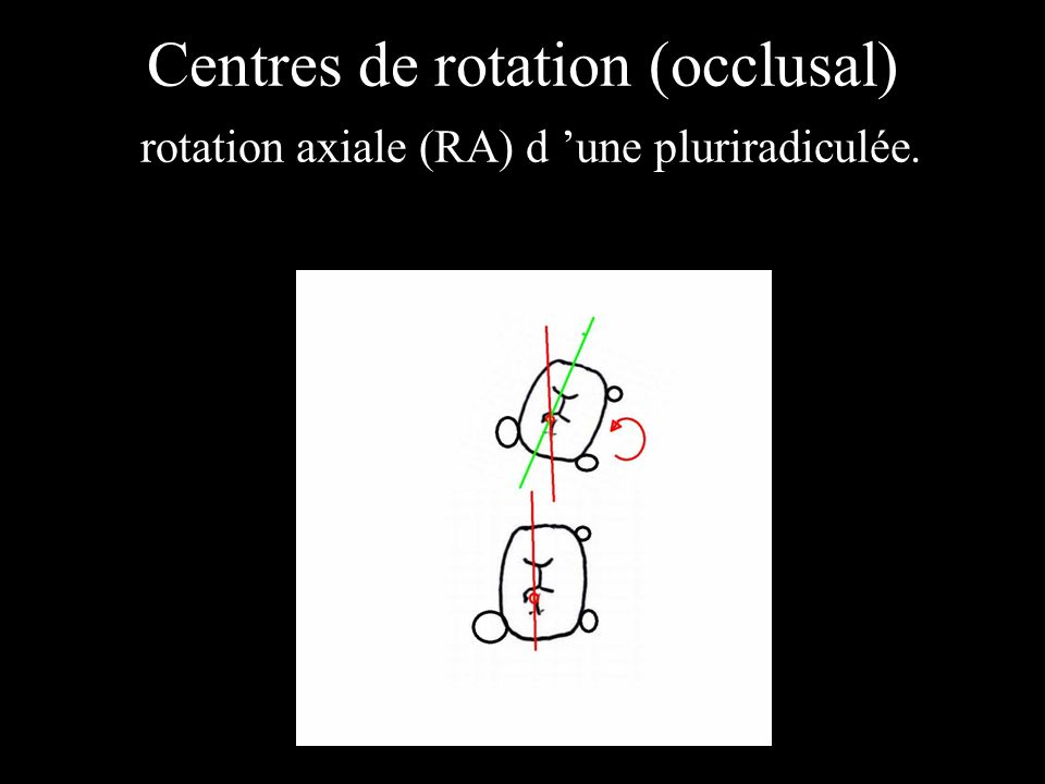 Centres de rotation (occlusal) rotation axiale (RA) d une pluriradiculée.