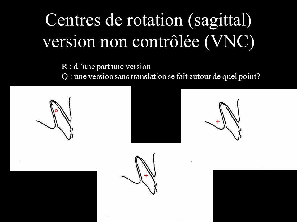 Centres de rotation (sagittal) version non contrôlée (VNC) R : d une part une version Q : une version sans translation se fait autour de quel point?