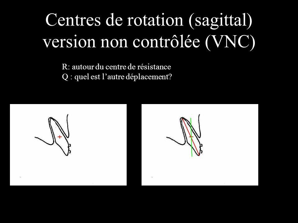 Centres de rotation (sagittal) version non contrôlée (VNC) R: autour du centre de résistance Q : quel est lautre déplacement?