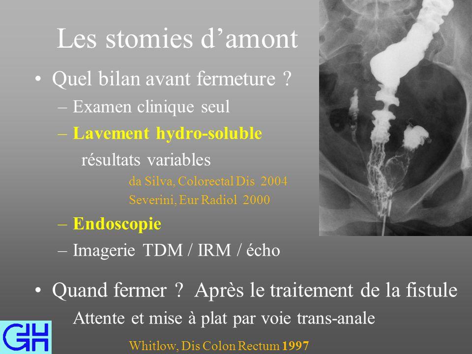 Conséquences dun sepsis pelvien chronique Tableau septique général Sclérose autour du réservoir diminuant sa capacité Sténose de lanastomose Emissions glaires / pus Incontinence