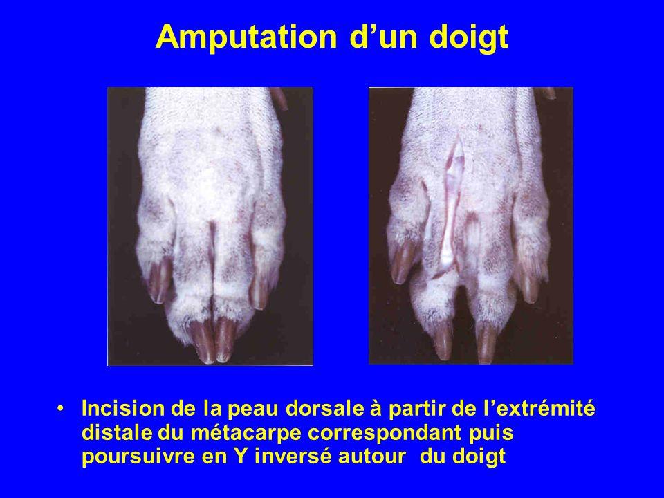 Amputation dun doigt Incision de la peau dorsale à partir de lextrémité distale du métacarpe correspondant puis poursuivre en Y inversé autour du doig