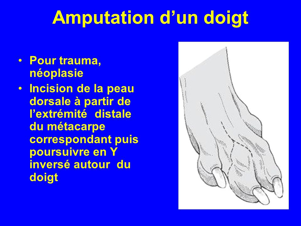 Amputation dun doigt Pour trauma, néoplasie Incision de la peau dorsale à partir de lextrémité distale du métacarpe correspondant puis poursuivre en Y