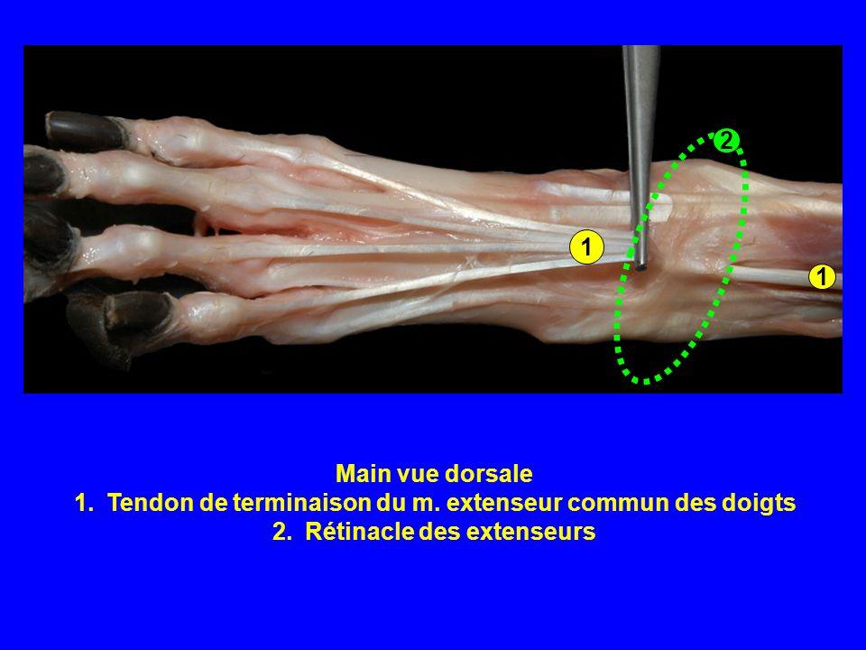 Main vue dorsale 1.Tendon de terminaison du m. extenseur commun des doigts 2.Rétinacle des extenseurs 1 1 2