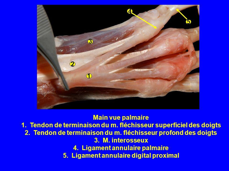 Amputation dun doigt Pour trauma, néoplasie Incision de la peau dorsale à partir de lextrémité distale du métacarpe correspondant puis poursuivre en Y inversé autour du doigt