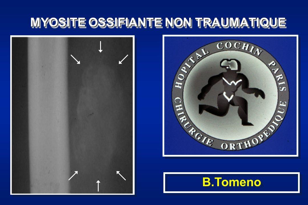 Définition: Métaplasie osseuse localisée (circonscrite) idiopathique A distinguer de: Myosite ossifiante post-traumatique Myosite ossifiante progressive (maladie de MunchMayer) Myosite ossifiante post-infectieuse Myosite ossifiante post-ischémie Para-ostéopathie neurogène (coma, paraplégie…) Ossifications péri-articulaires post-opératoires ( Forestier ) …Définition: Métaplasie osseuse localisée (circonscrite) idiopathique A distinguer de: Myosite ossifiante post-traumatique Myosite ossifiante progressive (maladie de MunchMayer) Myosite ossifiante post-infectieuse Myosite ossifiante post-ischémie Para-ostéopathie neurogène (coma, paraplégie…) Ossifications péri-articulaires post-opératoires ( Forestier ) …