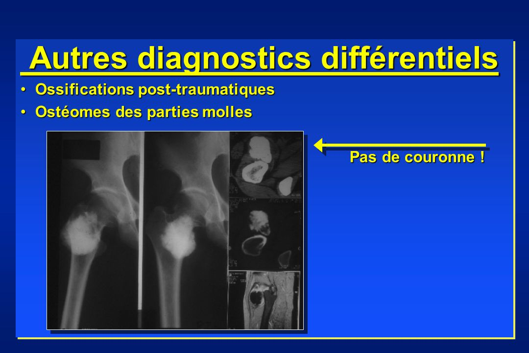 Autres diagnostics différentiels Autres diagnostics différentiels Ossifications post-traumatiquesOssifications post-traumatiques Ostéomes des parties
