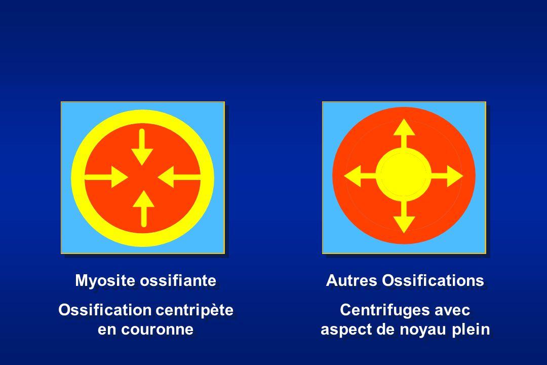 Myosite ossifiante Ossification centripète en couronne Myosite ossifiante Ossification centripète en couronne Autres Ossifications Centrifuges avec as