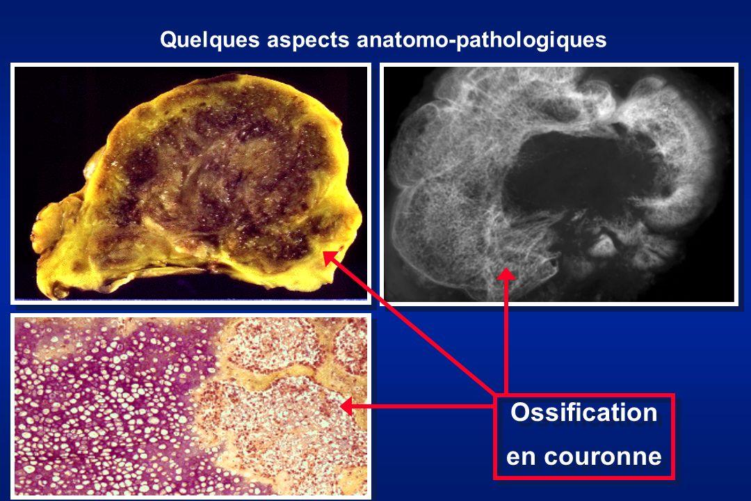 Quelques aspects anatomo-pathologiques Ossification en couronne Ossification en couronne