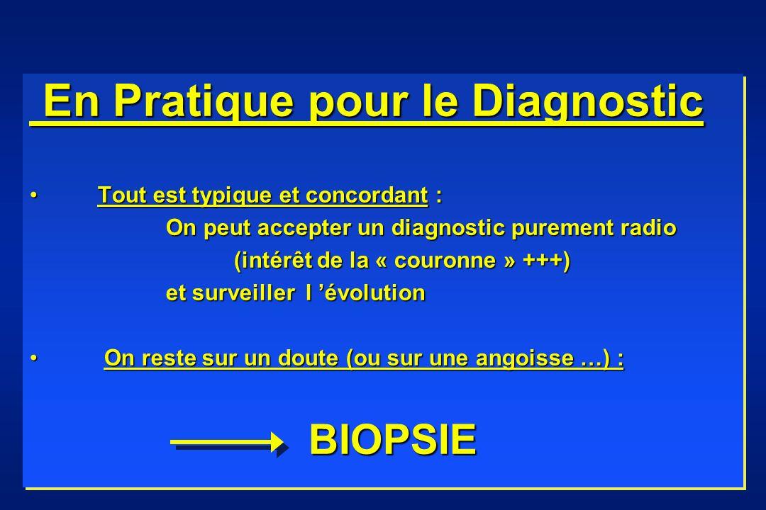 En Pratique pour le Diagnostic En Pratique pour le Diagnostic Tout est typique et concordant :Tout est typique et concordant : On peut accepter un diagnostic purement radio (intérêt de la « couronne » +++) et surveiller l évolution On reste sur un doute (ou sur une angoisse …) : On reste sur un doute (ou sur une angoisse …) : BIOPSIE BIOPSIE En Pratique pour le Diagnostic En Pratique pour le Diagnostic Tout est typique et concordant :Tout est typique et concordant : On peut accepter un diagnostic purement radio (intérêt de la « couronne » +++) et surveiller l évolution On reste sur un doute (ou sur une angoisse …) : On reste sur un doute (ou sur une angoisse …) : BIOPSIE BIOPSIE