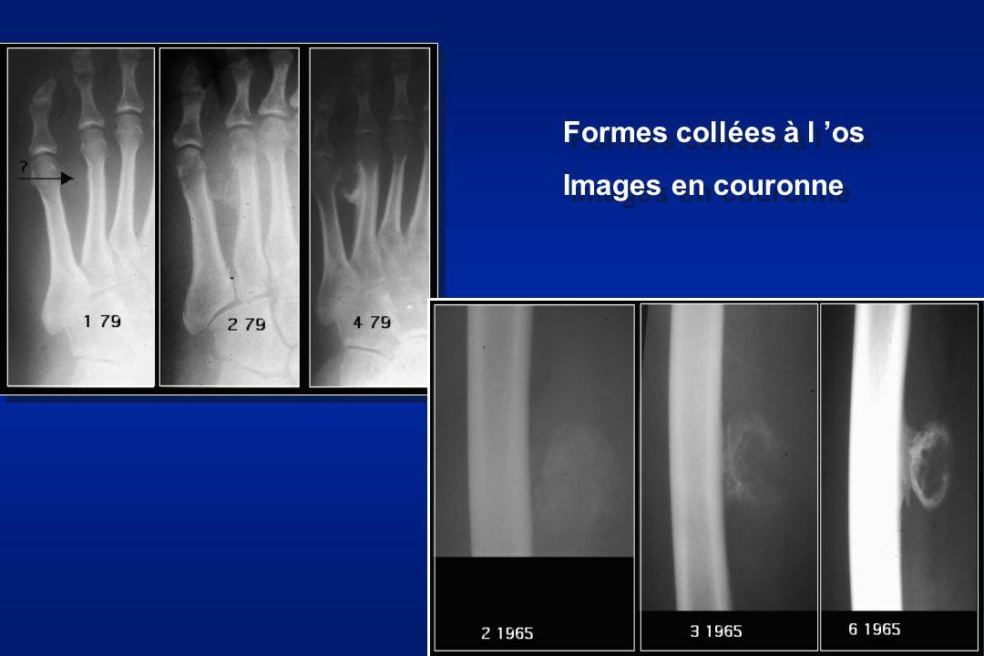 Formes à coté de l os, Images en couronne