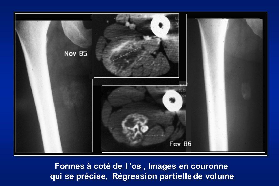 Formes à coté de l os, Images en couronne qui se précise, Régression partielle de volume